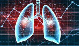 肺癌为何偏爱国人? 当心八种症状