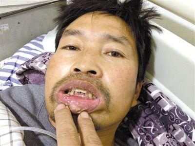 昨日,阜阳第二人民医院,庄兴南称,嘴是1日在回家的车上被打肿的。新京报记者 侯少卿 摄