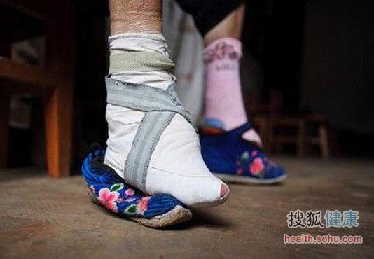 组图:袜子和脚臭的前世今生