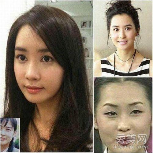 16位中韩美女明星整容前后大pk图