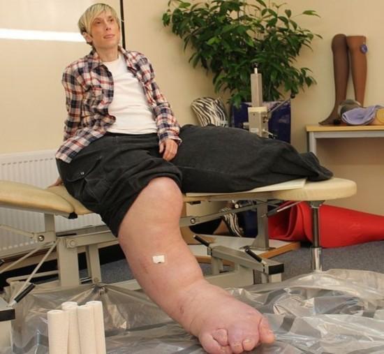 英女子患罕见疾病双腿重200斤 基因疗法有望助其再次走路