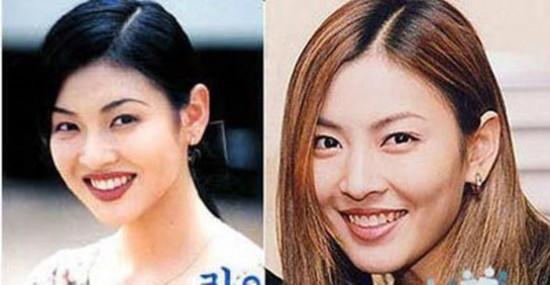 图揭韩国女星整容后遗症图片