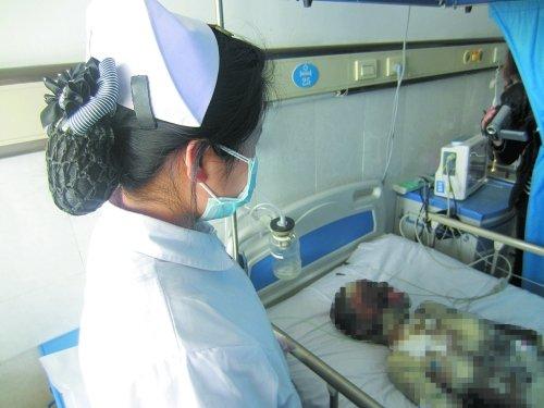 闫倩玉 女孩/一名护士照看烧伤女孩闫倩玉。
