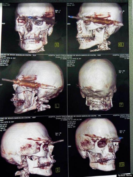 小时 大脑 刺穿/据美国《赫芬顿邮报》4月22日报道,巴西一名渔夫意外被鱼枪从...
