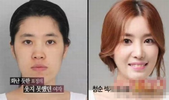 韩国小姐候选人素颜照曝光 图揭韩国惊悚整容术图片