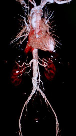 上身血管、心脏和肾脏的扫描图像,由日本东芝公司制造的世界上最先进的CT扫描仪拍摄