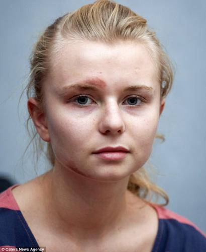 """英国一位名叫希娜克里斯汀的女孩长得酷似美国著名歌星泰勒斯威夫特,因为一脸""""星相""""遭人嫉妒,被人殴打,脸部被踢伤。[每日邮报]"""