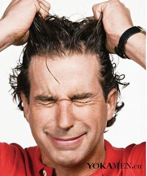 头屑 夏季男士护发6个技巧图片