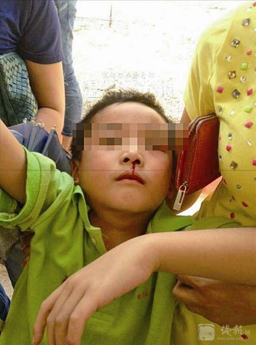 浙江19名学生流鼻血近百人呕吐 矛头指向附近工厂[3p]