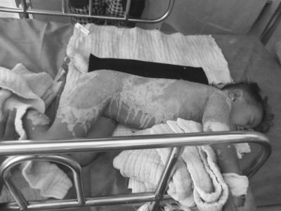 海南屯昌3岁女孩全身大面积烫伤无钱医治