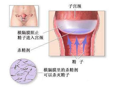 全面目击女人避孕全过程【高清组图】【4】--
