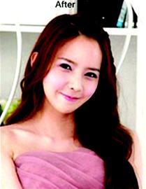 丑女变美女 韩国整容大变身节目向中式审美靠拢
