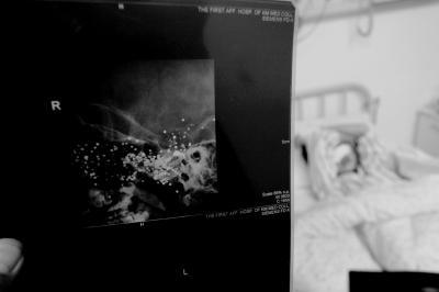 谭青摄/X光片显示,小英的脑中还有大量金属异物。京华时报记者谭青摄...