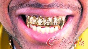 """土豪常常有""""惊人之举"""",比如,这位土豪就在牙齿上镶上黄金钻石。"""
