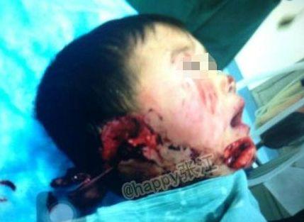 男童遭婶婶割双耳下巴因建房矛盾 6岁凡凡左耳坏死右耳接活