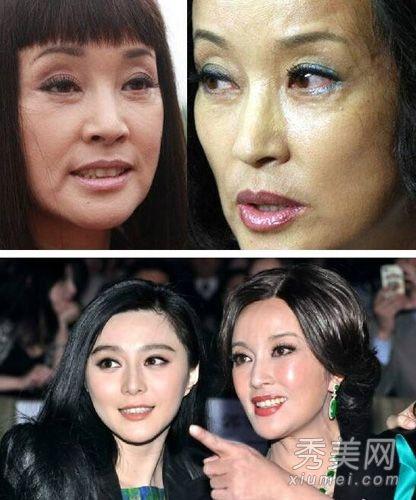 女星整容后遗症丑图曝光 王菲脸僵柳岩脸歪图片