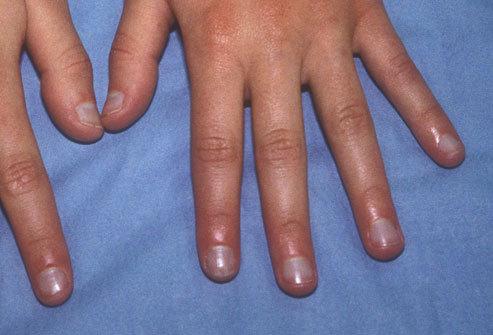 养生警惕 从指甲看出身体哪有疾病