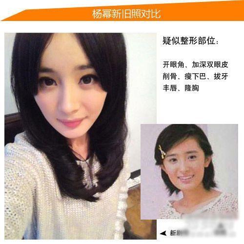 疑似整容的女明星:王菲打针萧亚轩割双眼皮【