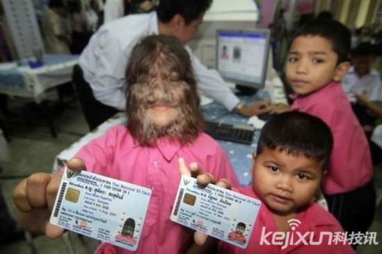 """泰""""狼人综合征""""女孩领取身份证"""