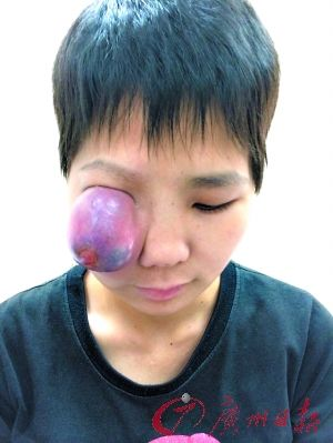 恶性肿瘤苹果大右眼舞蹈被挤瞎劲爆女生姑娘图片