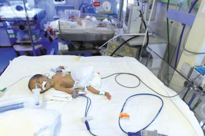 700克早产女婴被弃路边 识别带上或留母亲名字