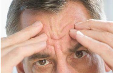 抬头纹多易发心脏病 揭男人脸部5大健康信号
