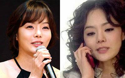 韩国首批整容者遭遇后遗症 蔡琳脸完全僵掉似机器人图片