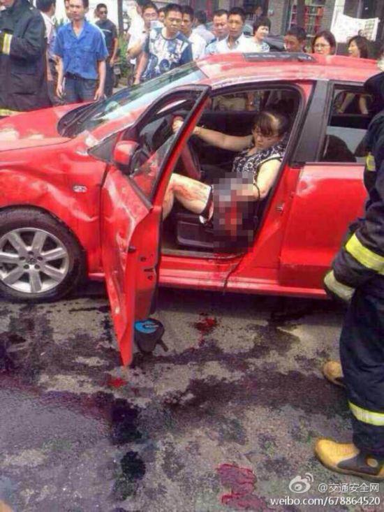 女子将手伸出窗外致折断_无锡:一女子驾驶时将手伸出窗外致折断(组图)--陕西频道--人民网