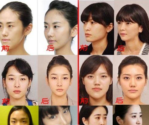 蔡琳少女时代洪秀贤韩彩英 曝韩女星整容前后对比照