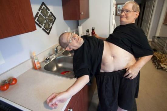 美国连体兄弟将迎63岁生日 有望打破世界纪录