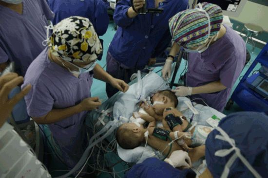 Conjoined girls separated in surgery