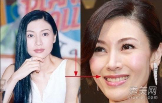 林志玲大鼻孔 揭秘十大漂亮女星五官致命缺陷