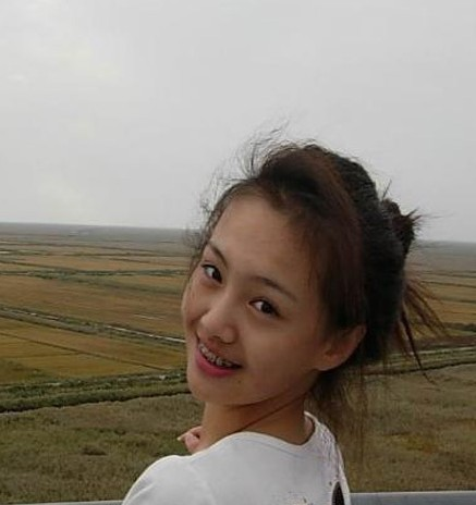 杨颖晒丑照首度承认整容 明星罕见带牙套照曝光