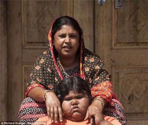 世界上最胖儿童:印度9岁女孩体重达92公斤