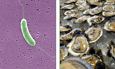 """""""吃人肉细菌""""肆虐美国 致命微生物高清照(组图)"""