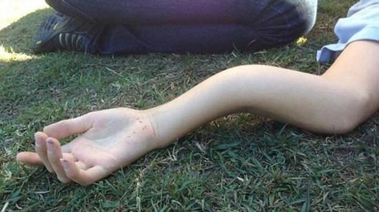 一位澳大利亚高中男孩詹姆斯在一场校园足球赛中胳膊受伤,胳膊骨头摔图片