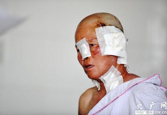 新疆发生狼群袭人事件 6人受伤1人耳朵被咬掉