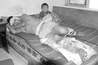 海口男子倒垃圾时双腿被打骨折无钱住院治疗