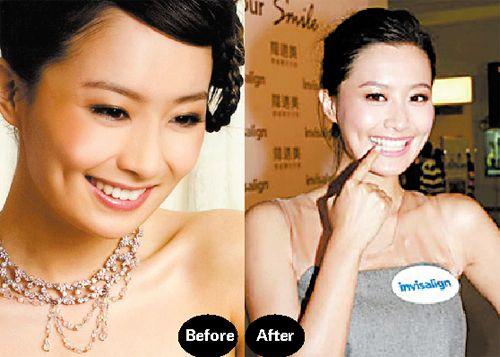 女明星为什麽都爱牙齿隐形矫正 前后对比照曝光