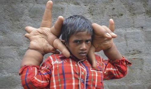 印度8岁男童长巨手 揭秘罕见的奇闻异事