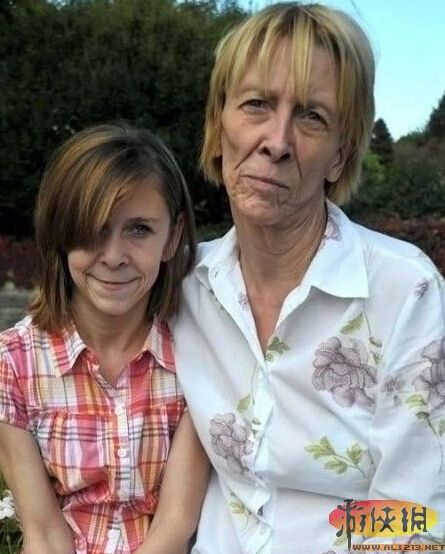 13岁女孩患怪病貌似老太婆-11岁早衰女童返童还老 揭秘全球不可思议
