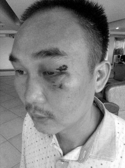 三亚:男子强拉塔吊电闸被打伤 警方正在调查