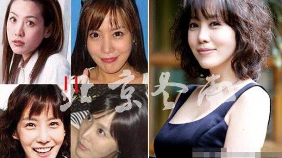 郑丽媛脸残起块疑现整容后遗症 揭韩国整容女星今昔美丑图片