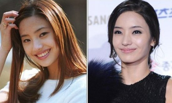 残起块疑现整容后遗症 揭韩国整容女星今昔美丑图片
