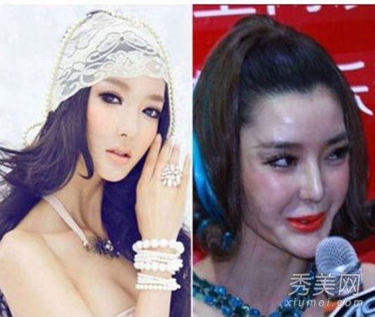 10大美女明星 整容失败丧命毁容――人民网・重庆