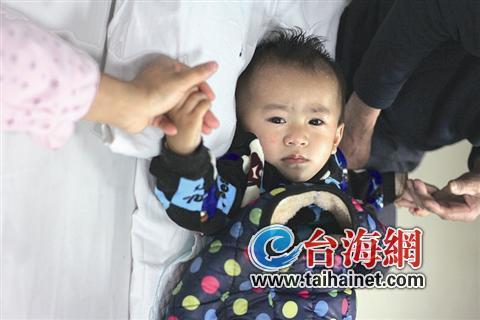 周歲寶寶骨折兩次