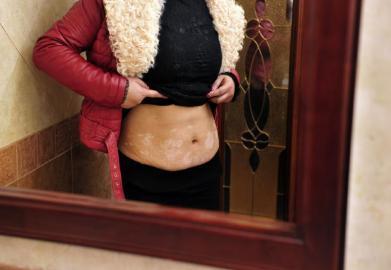 成都女子减肥减出白癜风 状告代言人伊能静(图)
