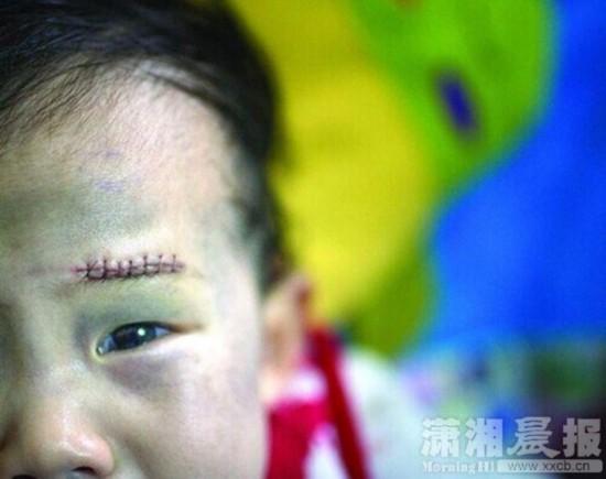 儿童眼睛受伤图片