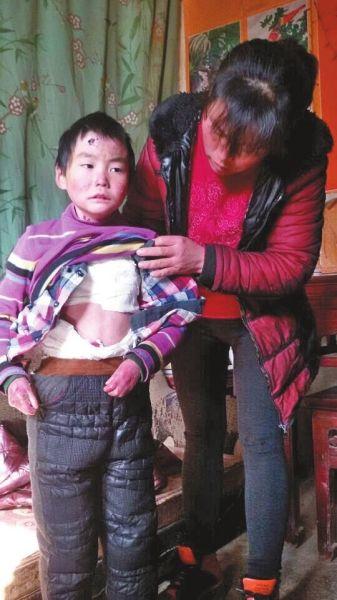 河南8岁男童患罕见病 全身皮肤一触碰即溃烂(图)