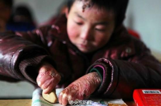 男孩皮膚一碰就破 衛生紙裹全身堅持上學